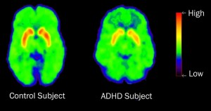 The brain of someone without ADHD compared to someone with ADHD.